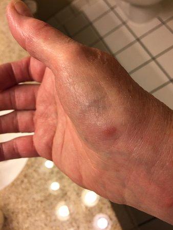 Best Western Hotel & Conference Center Johnson City: Bed bug bites
