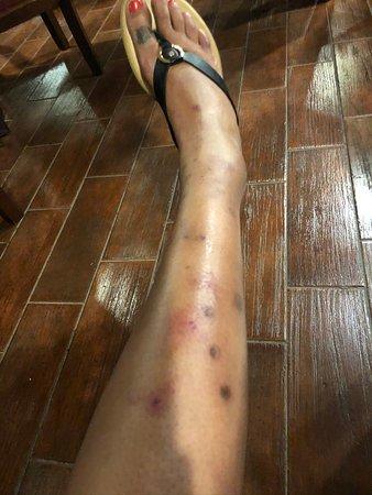 Mosquito and flea bites