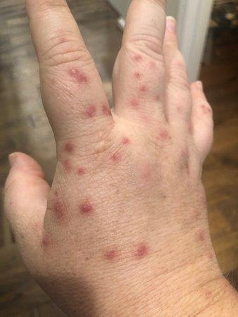 Williamsport, MD: Bedbug bites