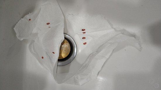 А этот клоп уже насосался моей крови(((