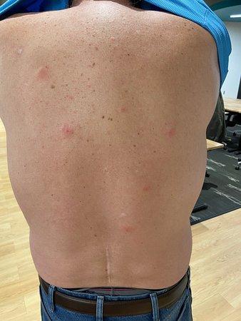 bug bites on my back