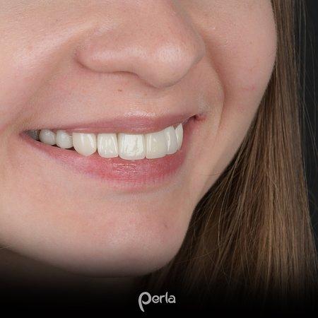 Nemačka: #🇹🇷 #🇺🇲  🇹🇷 Cad-Cam sistemimiz ile dizayn edilen estetik zirkonyum kronlar ile Rusya'dan gelen hastamızın dişlerinin rehabilitasyonu çok kısa bir sürede tamamlandı.  🇺🇲 Thanks to the easthetic zirconium that designed with CAD-CAM, the rehabilitation of the teeth of our patient from Russia was done in a short time.  Antalya Diş Poliklinikleri , Antalya Diş , Antalya Dental Clinics https://www.perladis.com