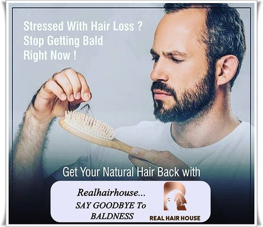 "Realhairhouse:- Stressed With Hair Loss? Stop Getting Bald Right Now! Get Your Natural Hair Back With Realhairhouse. ""SAY GOODBYE To BALDNESS"" Sardarji Real Hair House Contact Us: +91-9045384242 , + 91-7906348470 Website: www.realhairhouse.com/hair-wigs-in-delhi/ #frontline #hairpiece #toppiece #naturalresults #hairsolutions #hairlosssolution #ManWeave #wigs #hairrestoration #HairLoss"