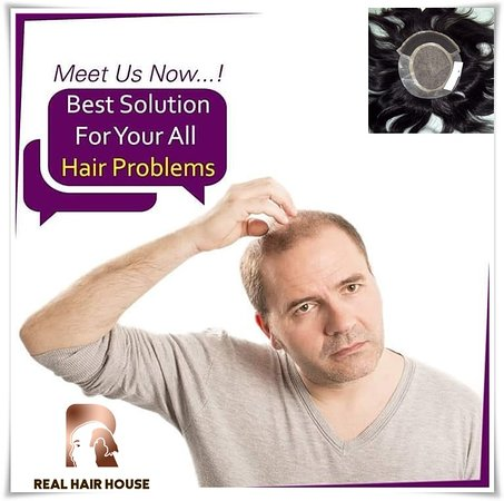 Hair patch is non-surgical method of hair replacement. It is absolutely safe and has no side effects. The hair patch is attached to the bald area with the help of cosmetic glue or even clips. The glue and clips are medicated and therefore, quite safe and do not lead to allergic reactions on the scalp Hair Patch in Delhi is available for gents as well as child. Contact Us: + 91-9045384242, + 91-7906348470 Website:  http://realhairhouse.com/hair-patch-in-delhi/