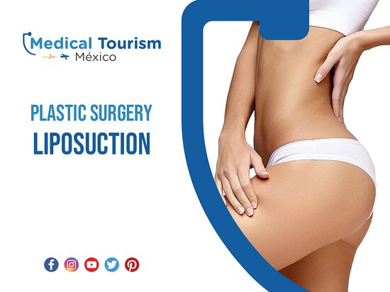 Get read of the stubborn excess fat with Liposuction, get the best prices and top quality in Merida, the plastic surgeon is ready to help you achieve your goals call today.   https://www.medicaltourismex.com/specialties/plastic-surgery/merida-clinic  #medicaltourism #medicaltourismmexico #bestdoctors #bestspecialist #topclinics #travel #mexico #healthcare #affordable #doctorsmexico #health #tourism #travelers #destinations