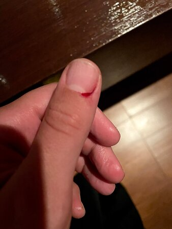 """Cutting my cuticle he cuts me, he looks at me and says """"I have no EXPERIENCE"""""""
