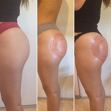 lifting Colombian ou buttlift