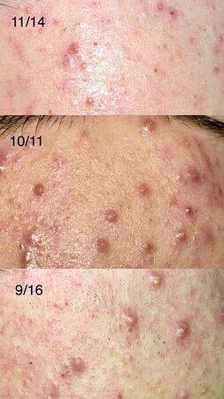 acne treatment