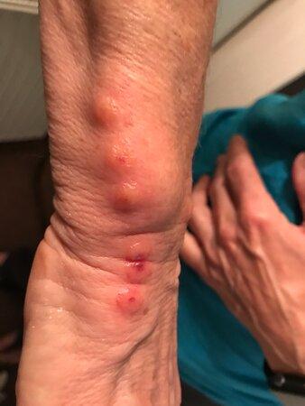 Trebarwith, UK: Bites on my wrist!