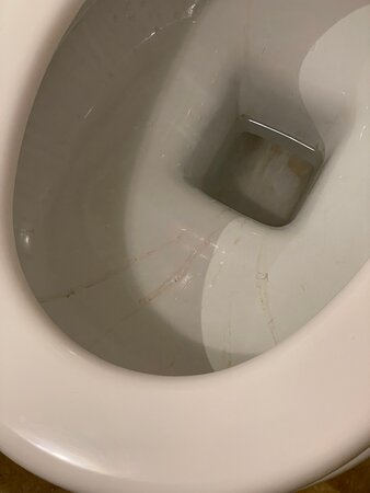 Filthy toilet in the bedroom of our supposedly 5 star hotel room.