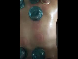 North Kauai Moving Cupping Therapy, Christine Walinch L.Ac.